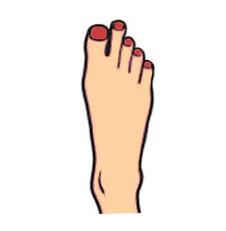 палец Мортона palets-mortona